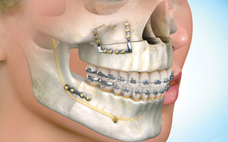 Surgery (Orthodontics for Orthognathic Surgery
